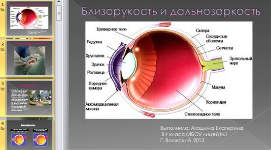 Простой астигматизм обоих глаз
